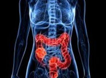 Le dépistage du cancer du colon